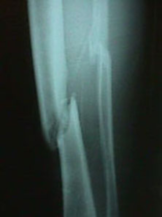 AP View of Tibia/Fibula Fracture