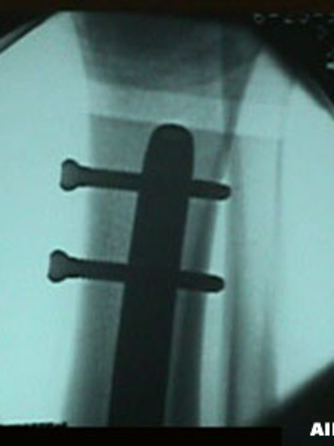 AP View of Tibia/Fibula Fracture After Repair