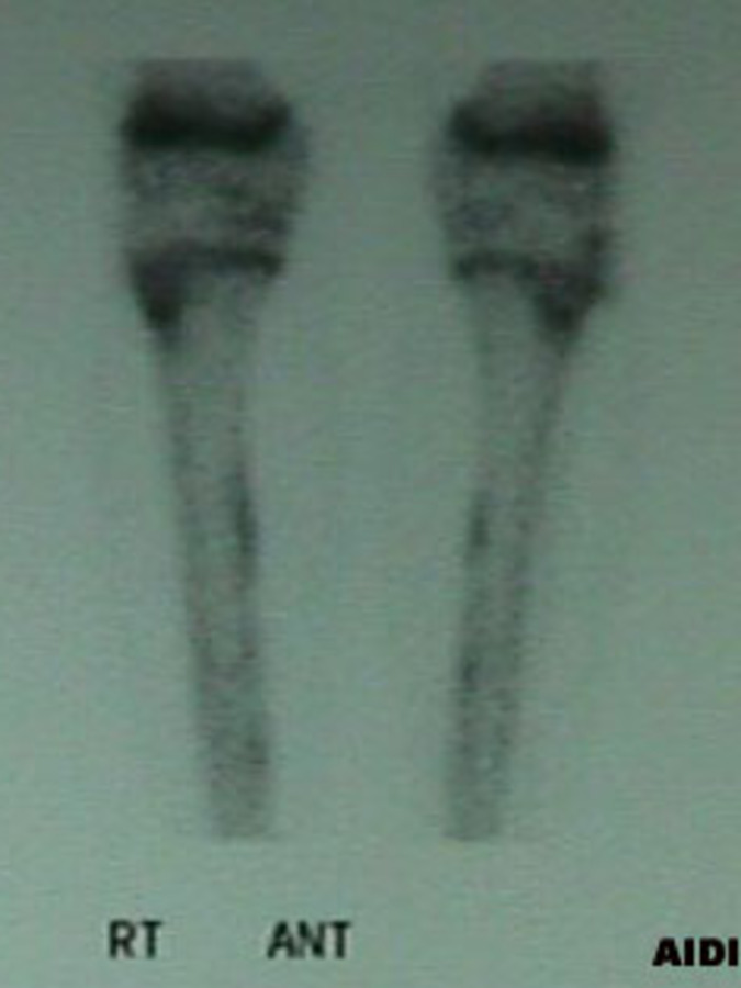 AP View of Bone Scan of Posterior Tibialis Periostitis