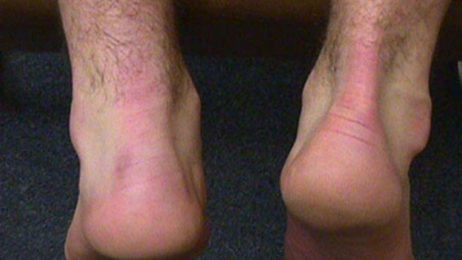 Posterior View of Ruptured Achilles Tendon