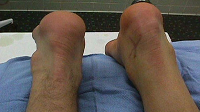 Ruptured Achilles Tendon Prior to Surgery