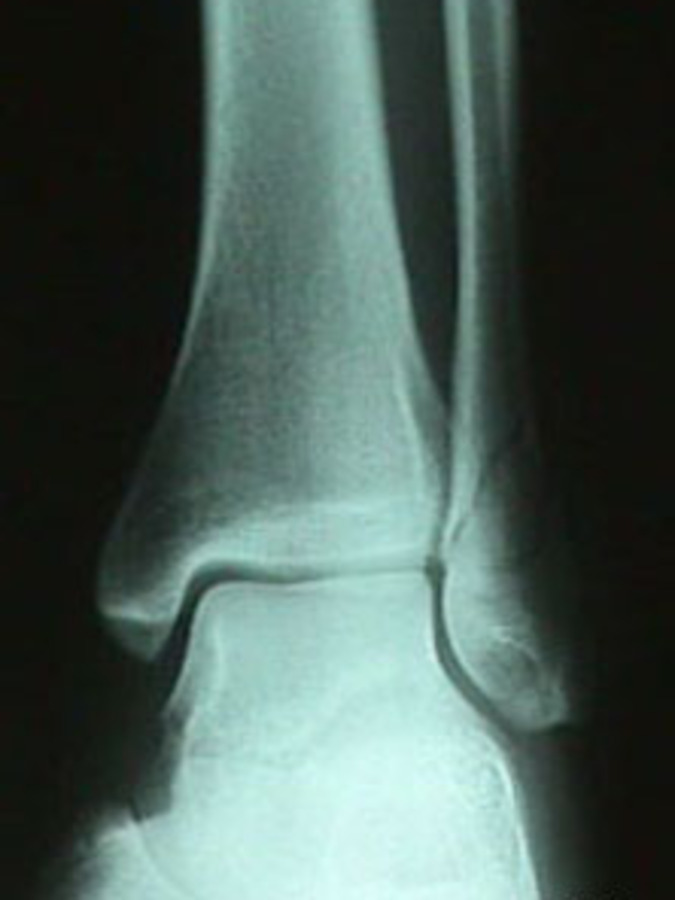 AP View of Fibula Fracture