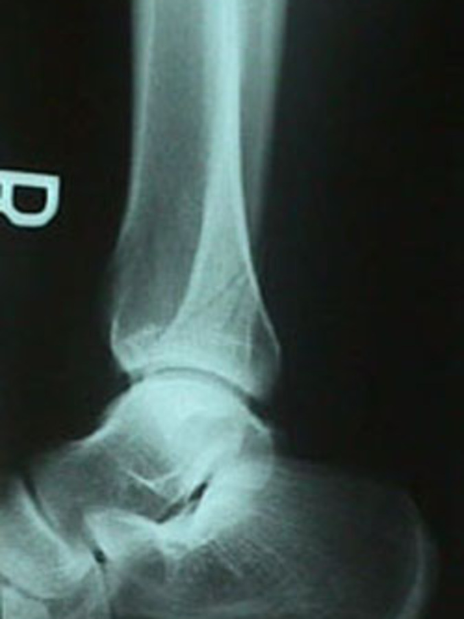 Lateral View of Fibula Fracture
