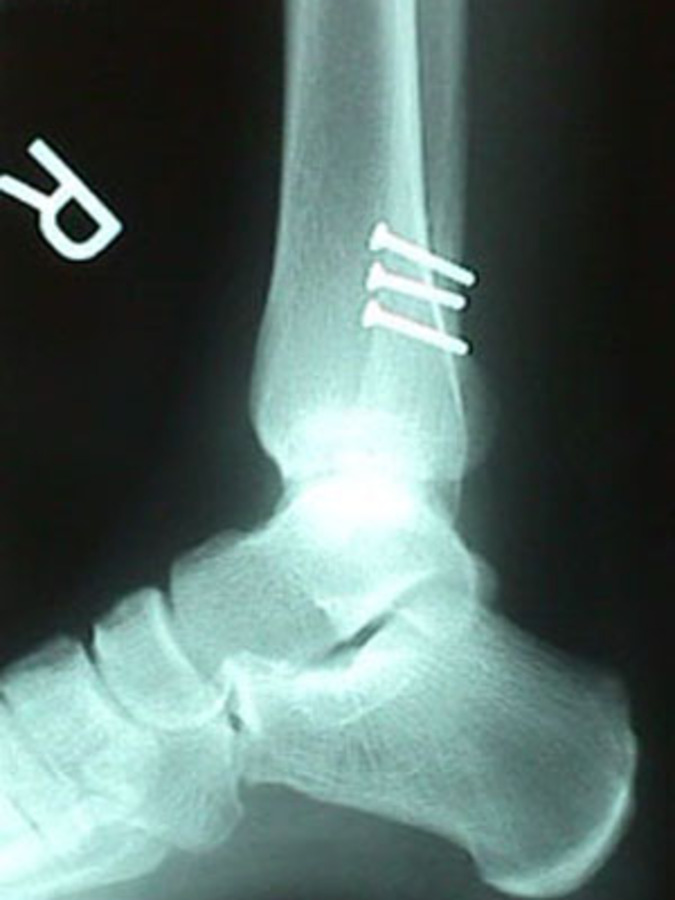 Lateral View of Fibula Fracture After Repair