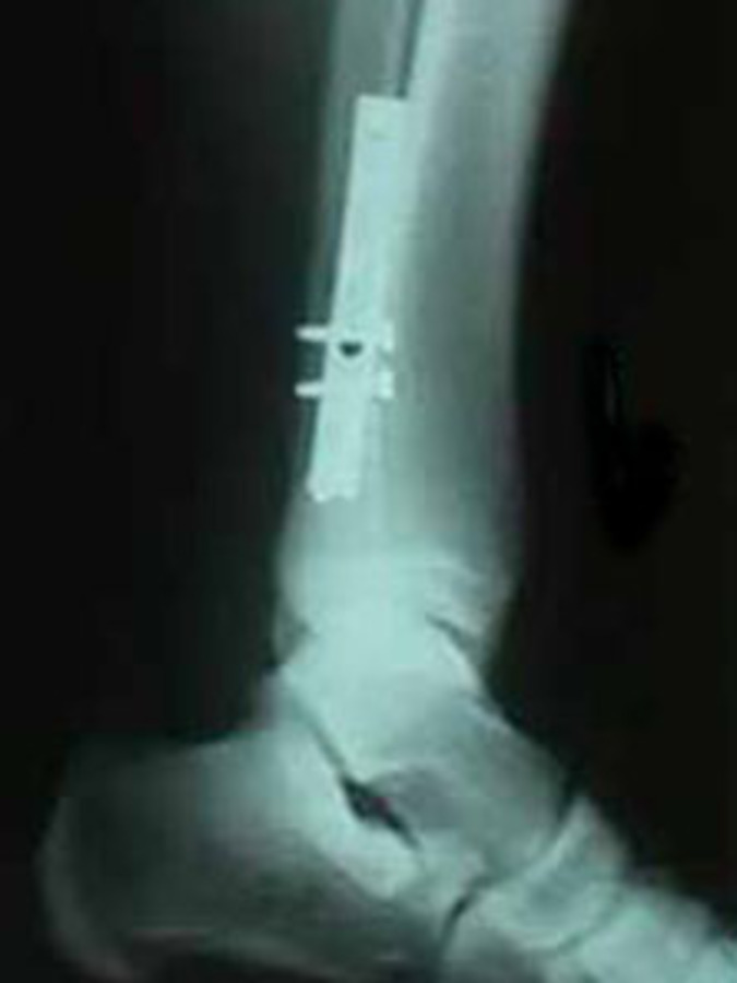 Lateral View of Fibula Fracture Repair with Plate