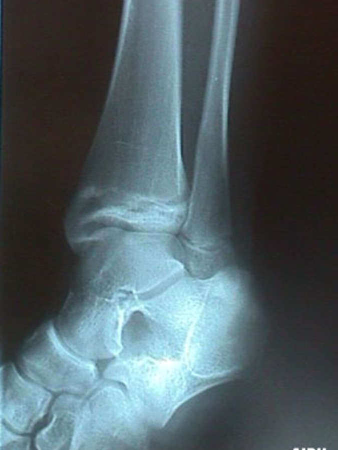 Mortise View of Epiphyseal Tibial Fracture - Salter-Harris Classification III