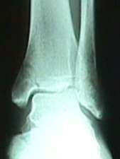 AP View of Tibia Fracture