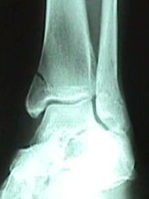 Mortise View of Tibia Fracture