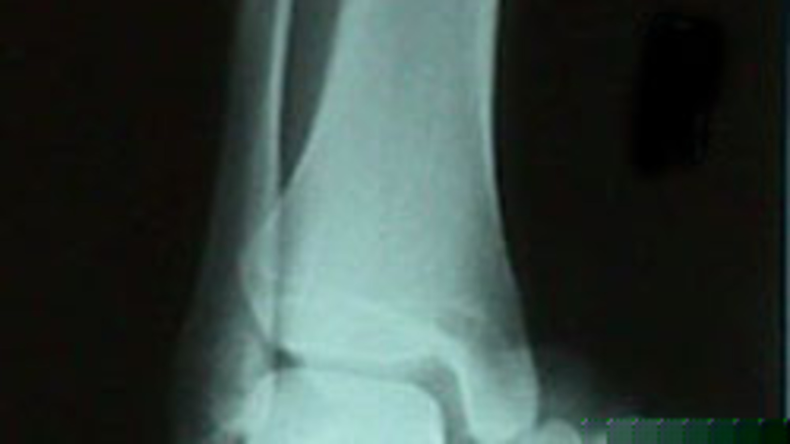 AP View of Ankle Dislocation