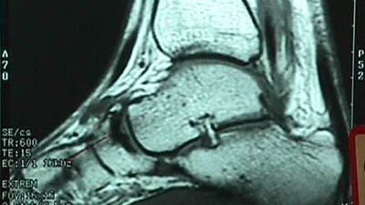MRI of Osteochondral Defect of Accessory Navicular