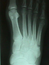 AP View of Jones Fracture