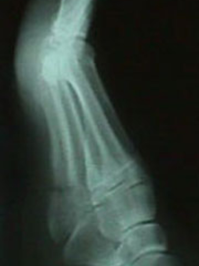 Lateral View of Jones Fracture