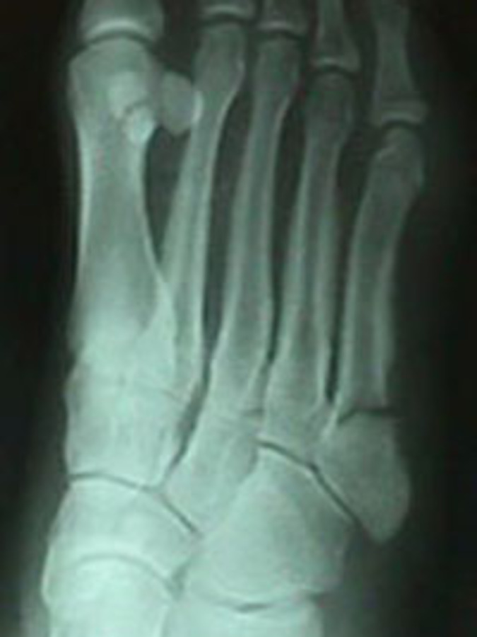 Oblique View of Jones Fracture