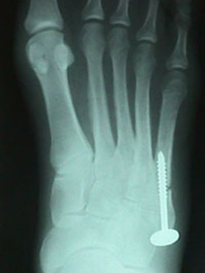AP View of Jones Fracture After Repair