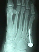 Oblique View of Jones Fracture After Repair